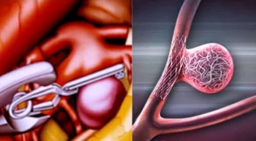 операция при аневризме