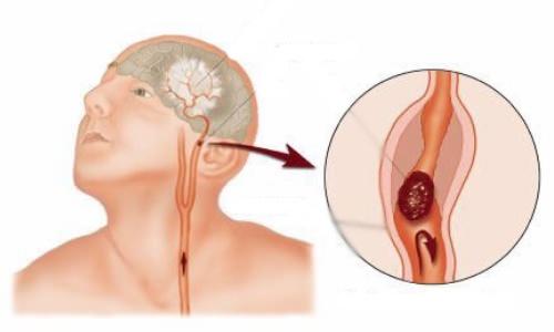anevrizma-mozg