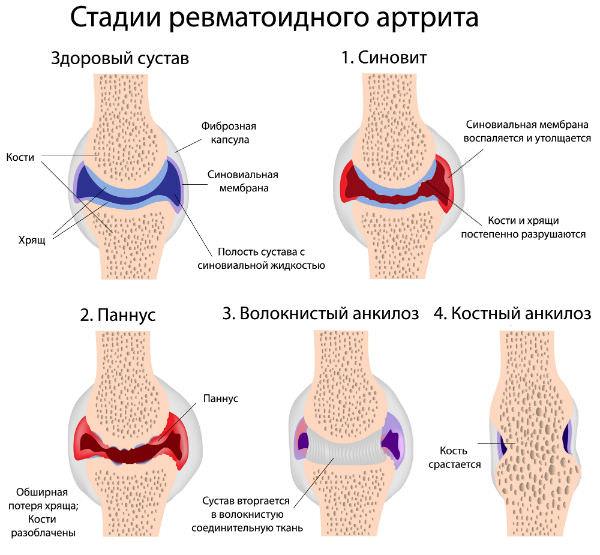 ревматоидный артрит причины симптомы лечение