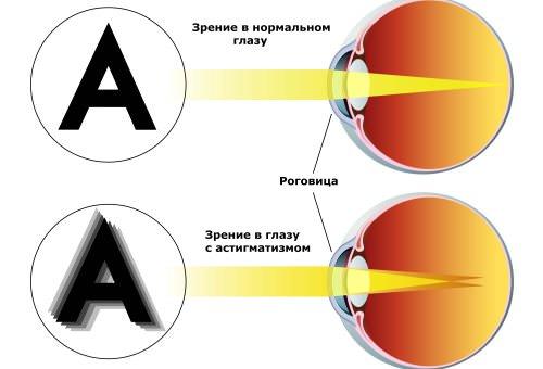 Хирургическая коррекция зрения противопоказания