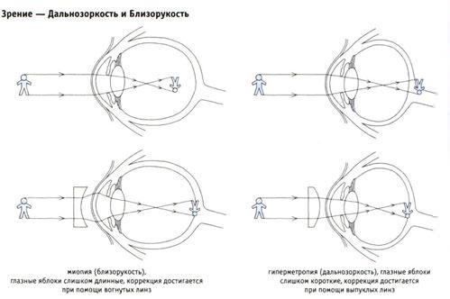 Лазерная коррекция зрения 150