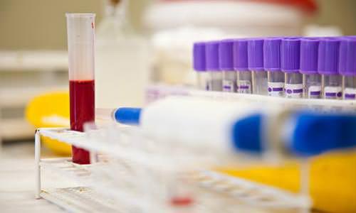 анализ крови на вирус Эпштейна-Барр