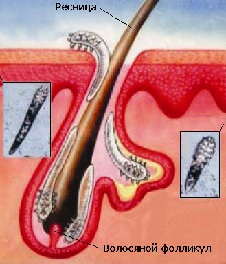 Блефарит. Блефарит – причины, симптомы и лечение. Виды ...