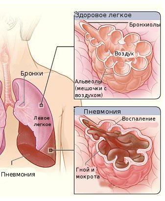 легике при пневмонии