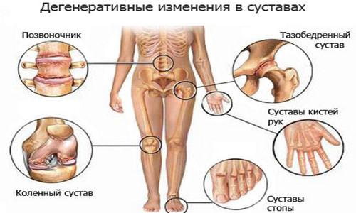 артроз суставы