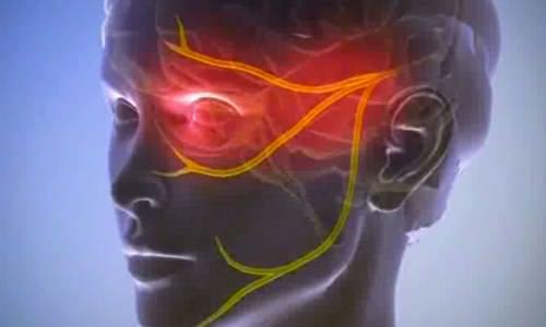 пучковая головная боль