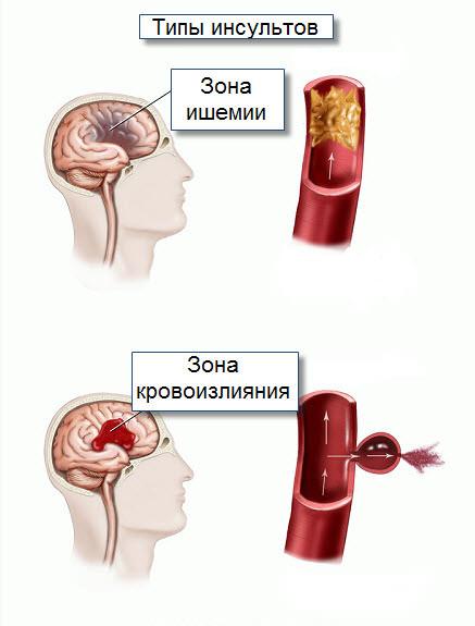 название статинов для снижения холестерина