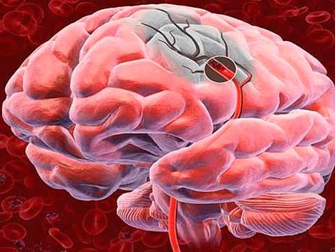 Регулярный контроль артериального давления предотвратит инсульт
