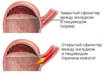 открытый сфинктер