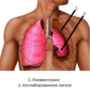 Клапанный пневвмоторакс