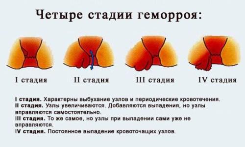 Геморрой симптомы лечение