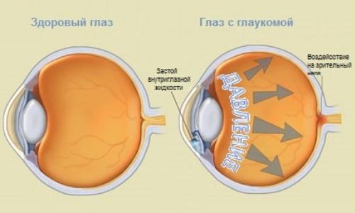 Взаимосвязь артериального и глазного давления