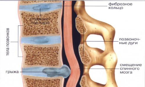 При подъеме боль в спине справа