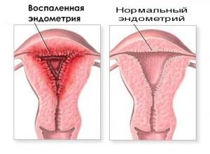причины эндометрита