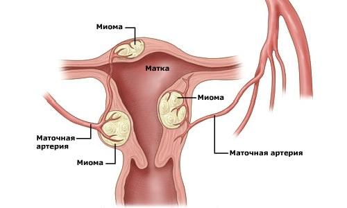 возникновение фибромиомы