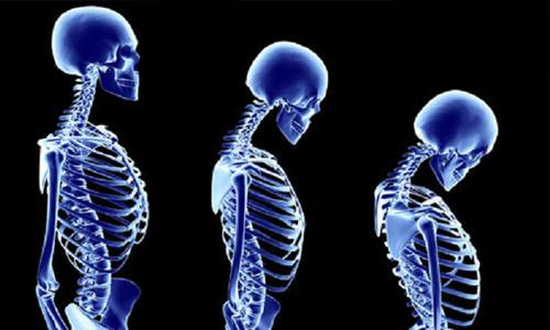 остеопороз скелет