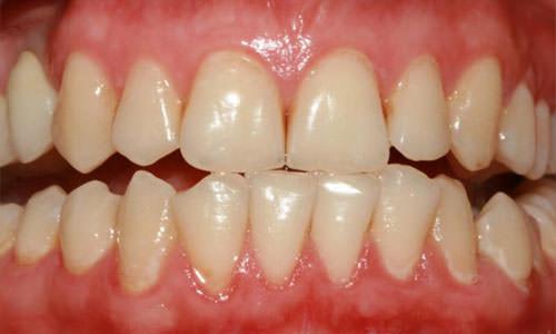 Болезнь зубов пародонтоз