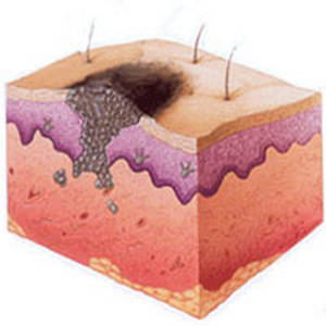 Удаление бородавок жидким азотом в нижнем новгороде