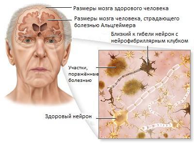 мозг при альцгеймере