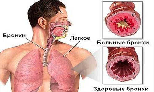 бронхиальная астма схема