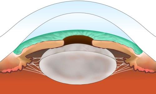 Операция по замене хрусталика глаза послеоперационный период