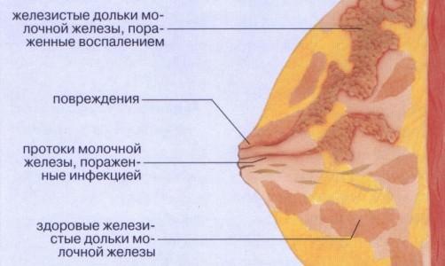 воспаление груди