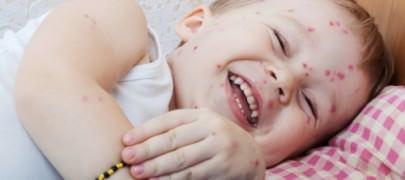 инкубационный период ветряной оспы у детей