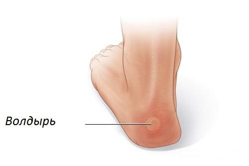 Как лечить волдыри на ступнях ног?