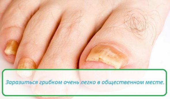 Лечение грибка ногтя во владивостоке