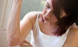 Опоясывающий герпес поражает далеко не исключительно кожу, однако равным образом нервную систему